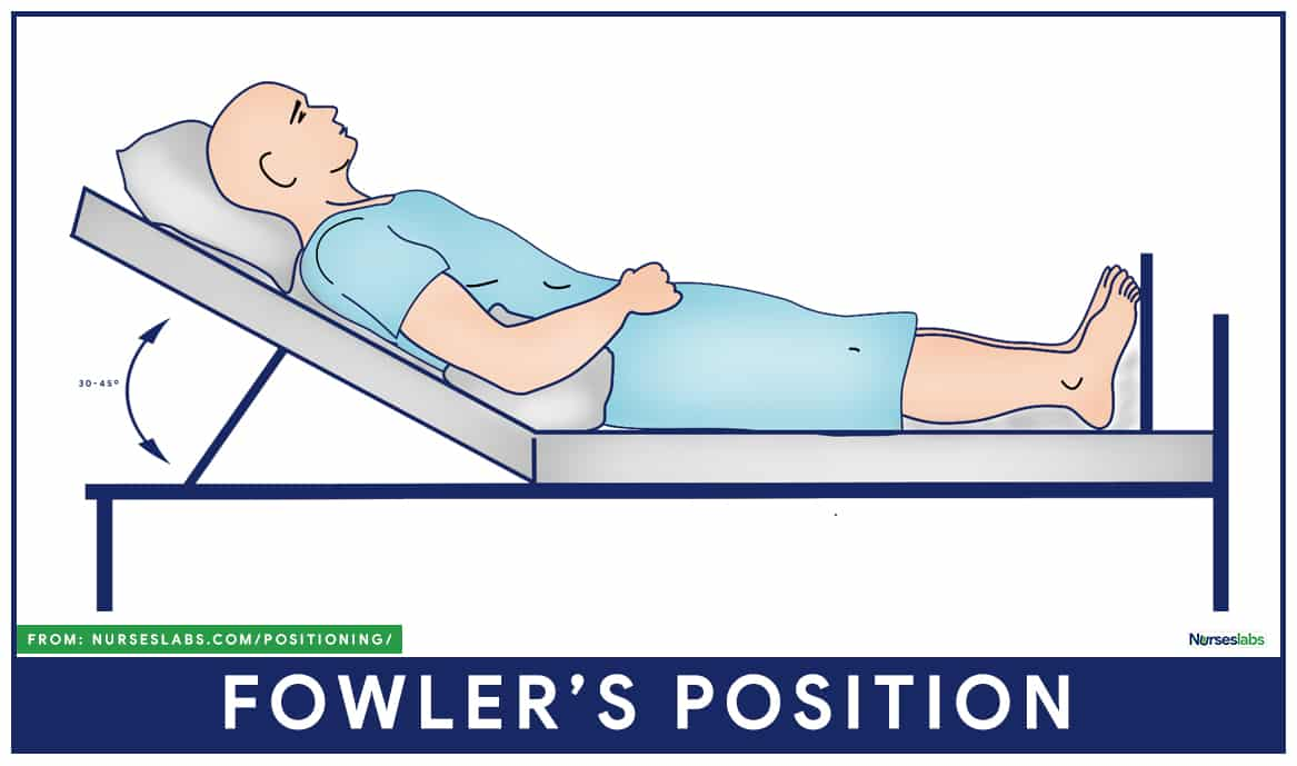1.Fowler's position